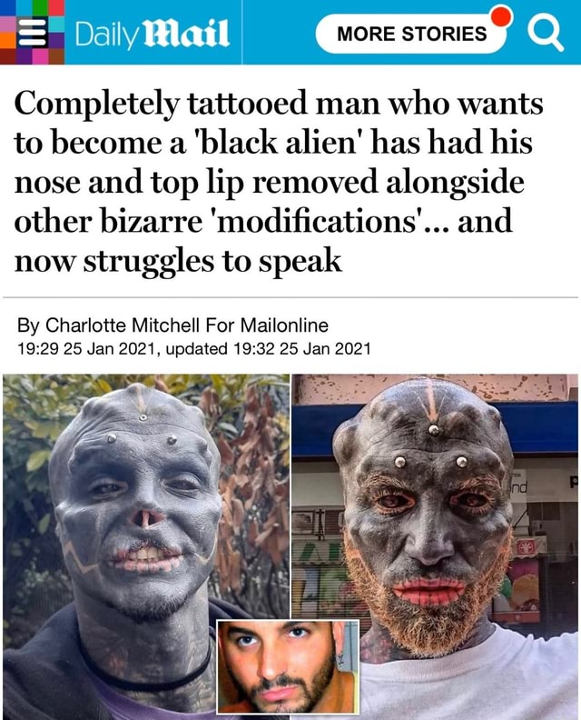Daily Hlaal MORE STORIES Completely tattooed man who wants to become a black alien has had his nose and top lip removed alongside other bizarre modifications' and now struggles to speak By Charlotte Mitchell For Mailonline 25 Jan 2021, updated 25 Jan 2021 meme